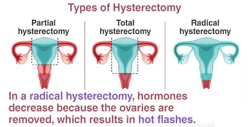 Hysterectomy Procedure in South Africa