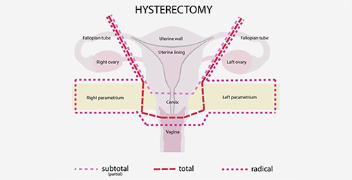 Is Pregnancy Possible After a Hysterectomy