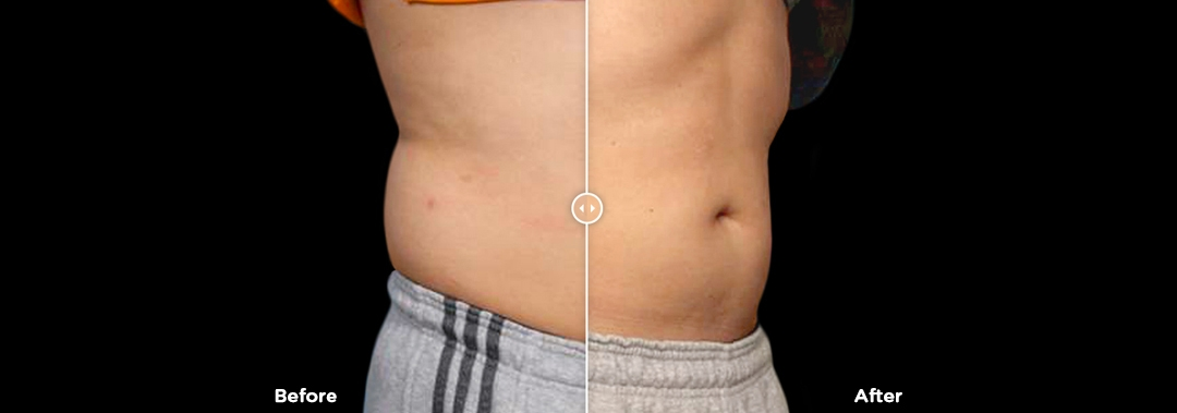 Before & after image of a man's stomach