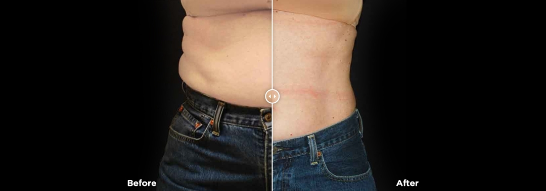 Before & after image of a lady's stomach