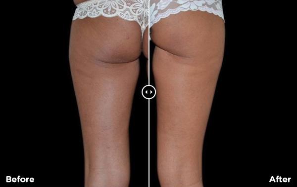 before-after-images of BTL x-wave treatment