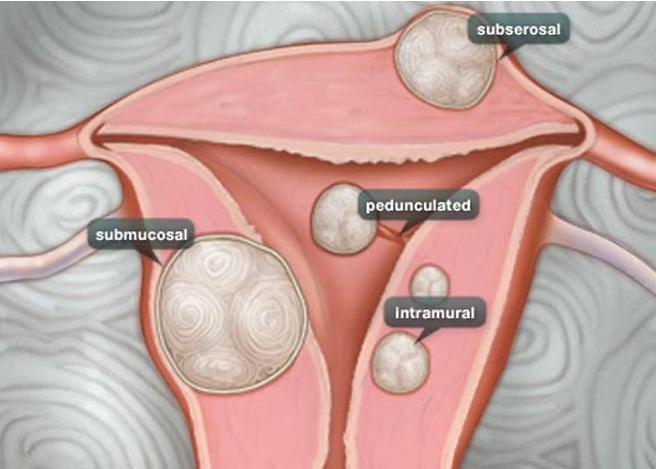 Fibroids and Polyps diagram.