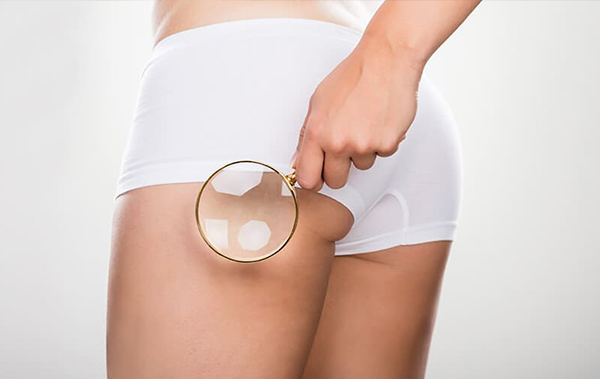 Women holding magnify glass to her buttock cheek.