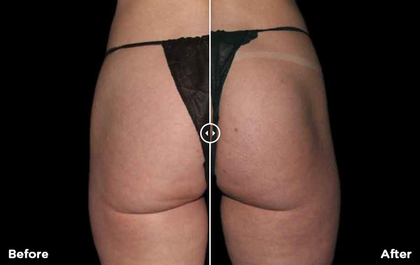 before-after-image of BTL treatment
