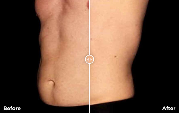 Before & after abs of BTL treatment